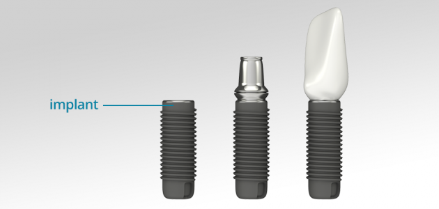 images/mod_blog/crown-abutment-implant_1200_19iw.jpg