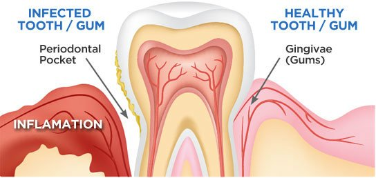 images/mod_blog/gum-disease-tourmedical-com_1200_1is8.jpg