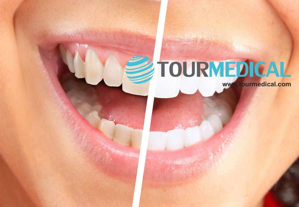 images/mod_blog/teeth-whitening-tourmedical-com-1_1200_1lvc.jpg