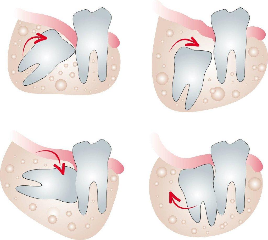 images/mod_blog/wisdom-tooth-tourmedical-com_1200_1fp4.jpg