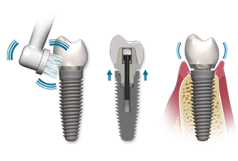 images/mod_treatments/after-care-dental-implant-tourmedical_1024_bko.png