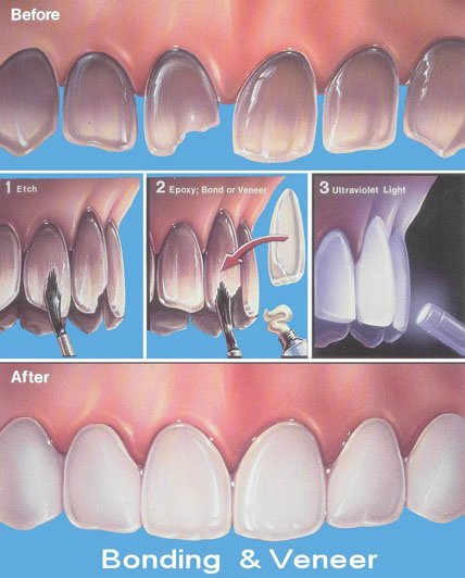 images/mod_treatments/dental-bonding-tourmedical-com-1_1024_g7c.jpg