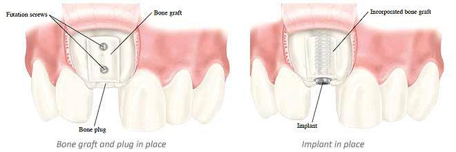 images/mod_treatments/bone-graft-implant-tourmedical-1_1024_bko.jpg