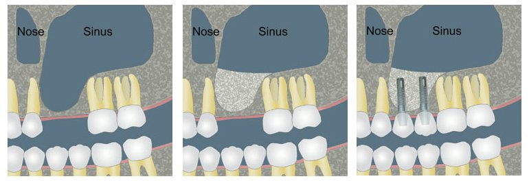 images/mod_treatments/bone-graft-sinus-lift-tourmedical-1_1024_bko.jpg