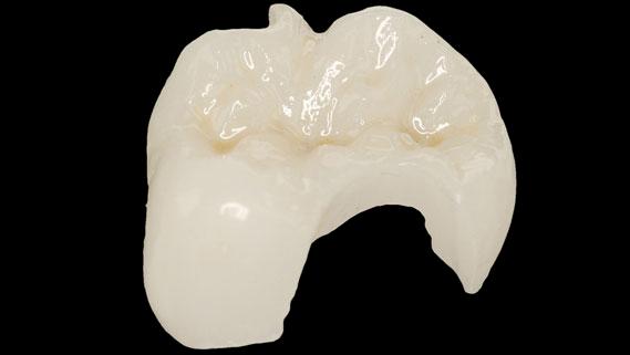 images/mod_treatments/cerec-inlay-tourmedical-com_1024_ffk.png