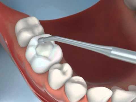 images/mod_treatments/composite-fillings-tourmedical-com-5_1024_dw0.jpg