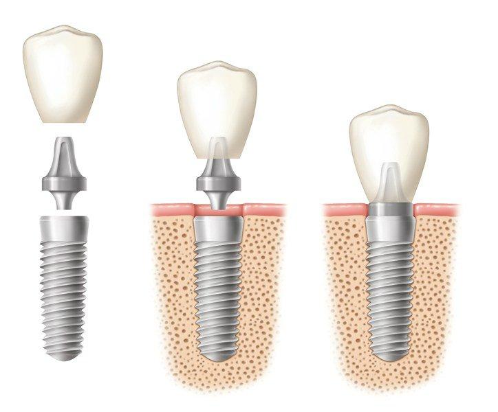 images/mod_treatments/crown-abutment-implant_1024_bko.jpg