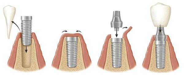 images/mod_treatments/dental-implant-procedure-steps-tourmedical_1024_bko.jpg