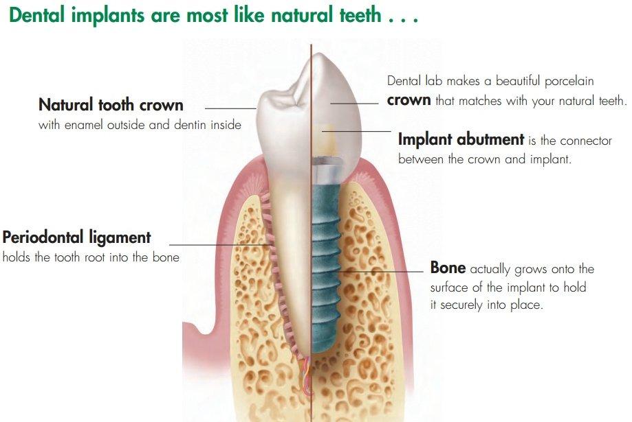 images/mod_treatments/dental-implant-tourmedical-001_1024_bko.jpg