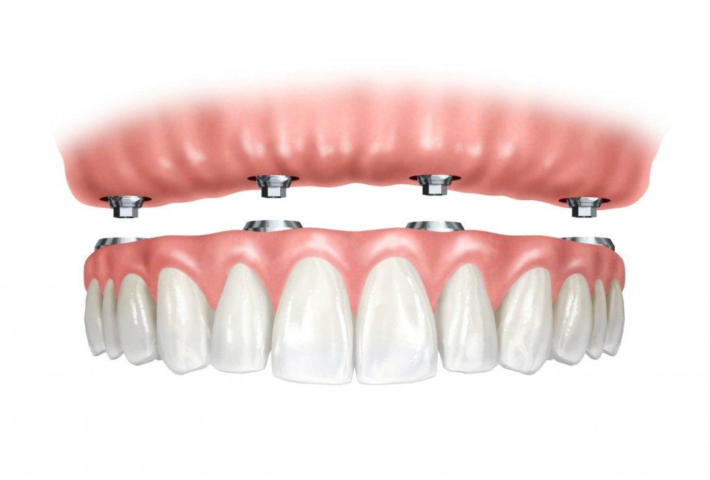 images/mod_treatments/dental-implants-scenarious-no-teeth-tourmedical_1024_bko.jpg