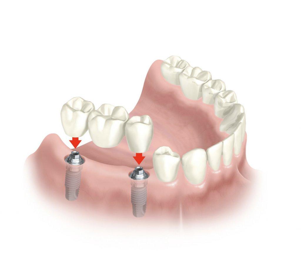 images/mod_treatments/dental-implants-scenarious-implant-bridge-tourmedical_1024_bko.jpg