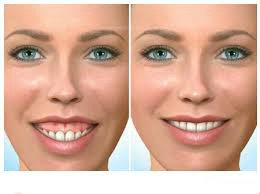 images/mod_treatments/gingivectomy-tourmedical-com-before-after-2_1024_iio.jpg