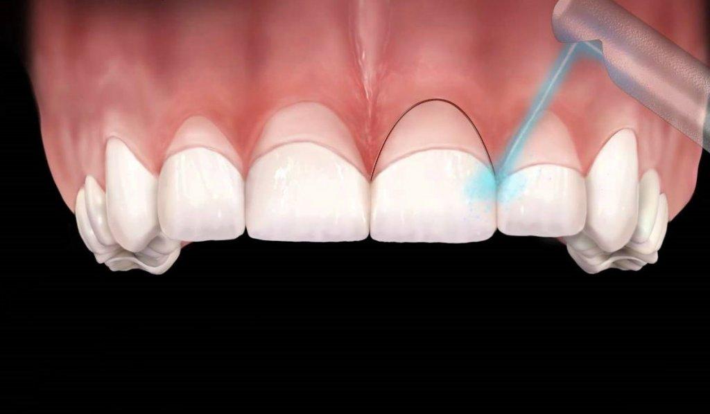 images/mod_treatments/gingivectomy-tourmedical-com-procedure-11_1024_iio.jpg