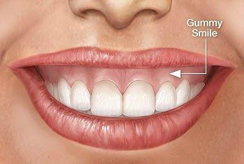 images/mod_treatments/gummy-smile-correction-procedure-tourmedical-com1_1024_iio.jpg