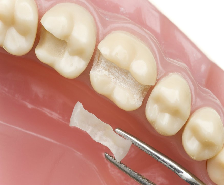 Inlay / Onlay Treatments / TourMedical Your Cosmetic Dentist In ...
