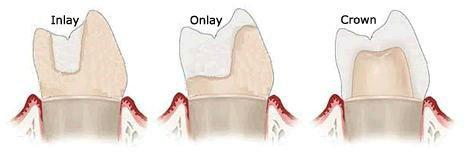 images/mod_treatments/inlay-onlay-dental-crown-tourmedical-com_1024_ffk.jpg