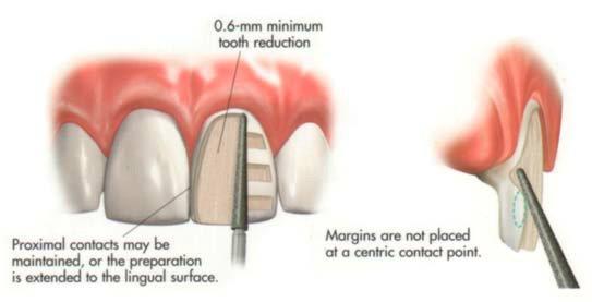 images/mod_treatments/preperation-veneer-tourmedical-com_1024_99c.jpg