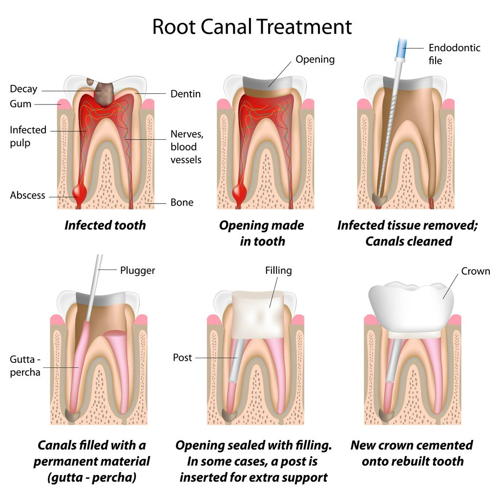 images/mod_treatments/root-canal-before-tourmedical-com_1024_jag.jpg