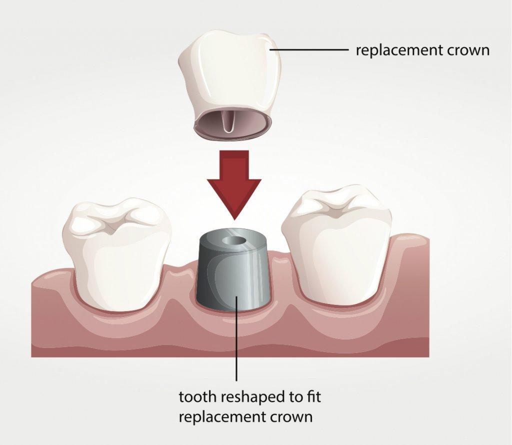 images/mod_treatments/zirconium-crown-preparation-tourmedical-com_1024_ens.jpg