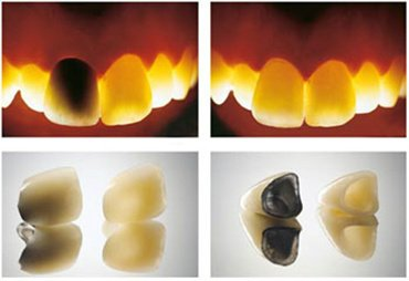 images/mod_treatments/zirconium-crowns-vs-porcelain-crowns-1-tourmedical-com_1024_1jk.jpg
