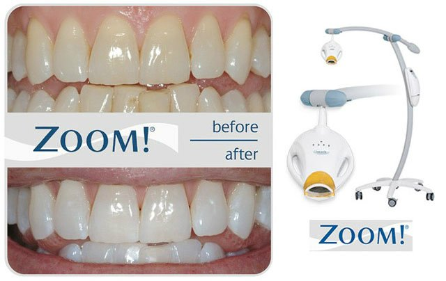 images/mod_treatments/teeth-whitening-tourmedical-com-4_1024_d48.jpg